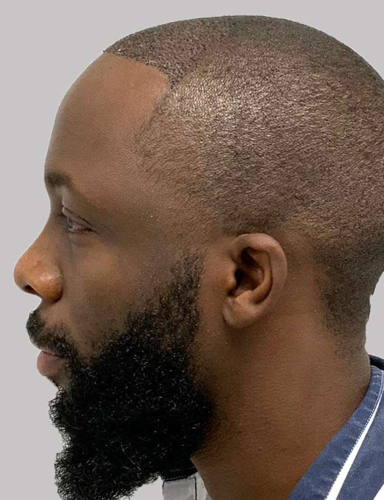 African-American Hair Transplant in Miami pt 1 after