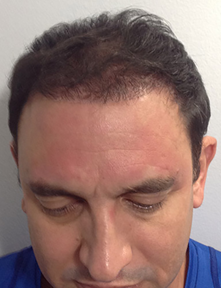 neograft hair transplant patient 3 after