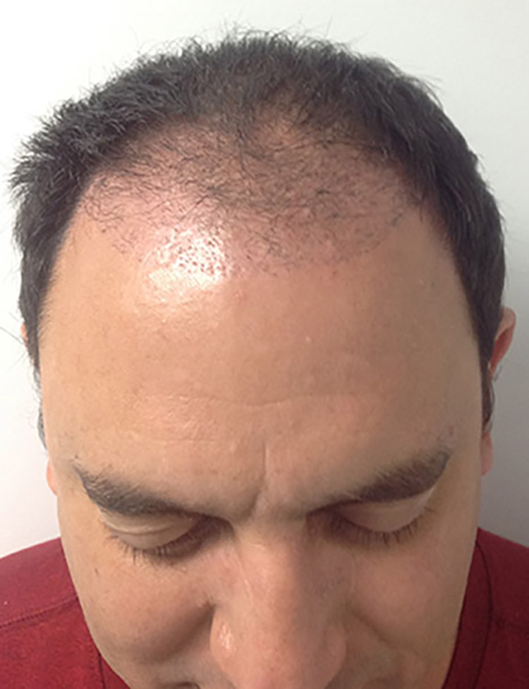 neograft hair transplant patient 3 before