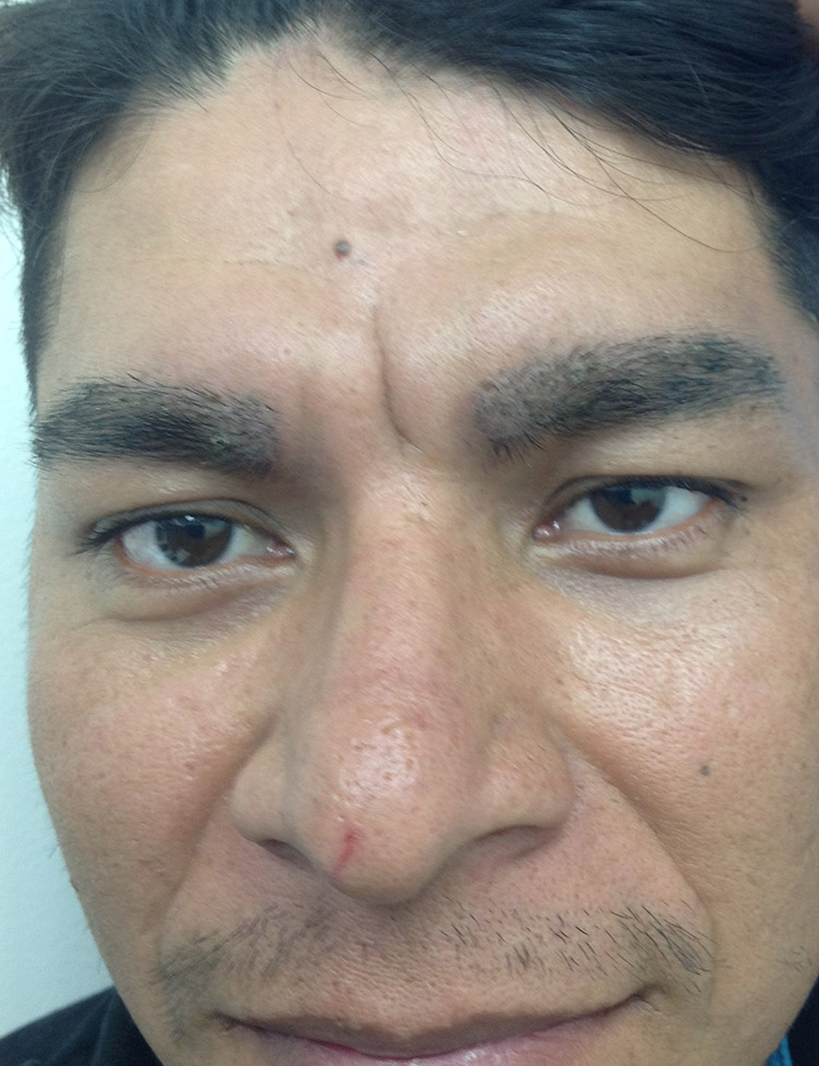 eyebrow hair transplant in Miami pt1 after