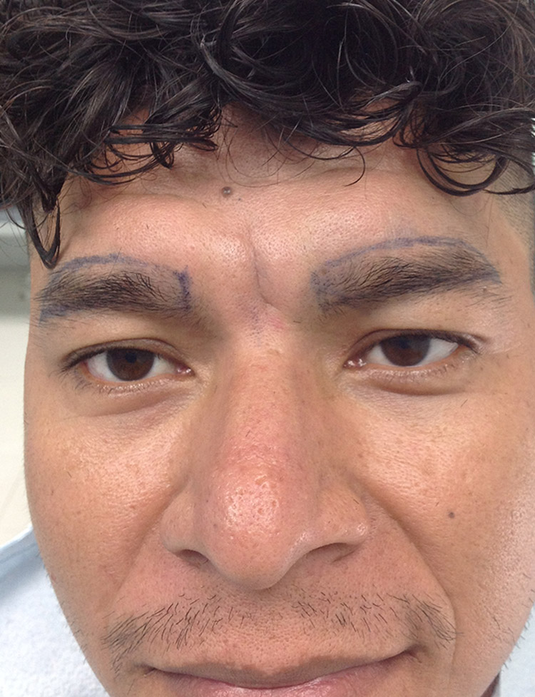 eyebrow hair transplant in Miami pt1 before