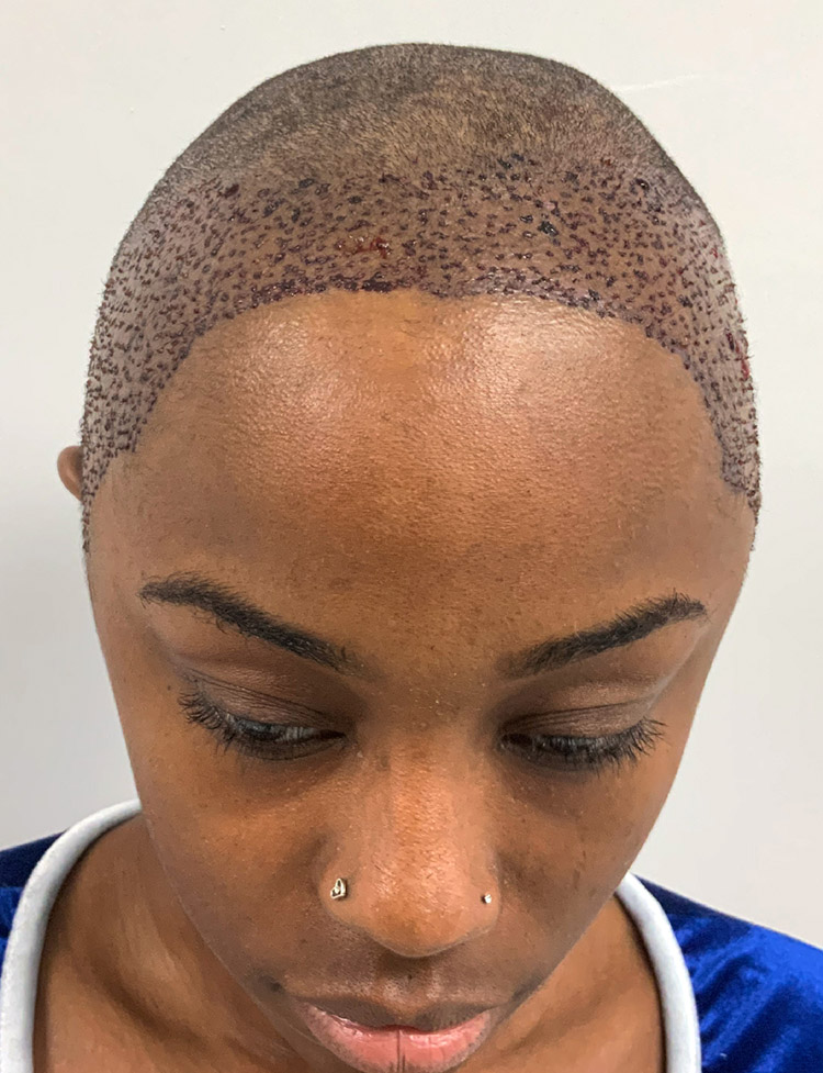 female hair transplant in Miami pt 1 after