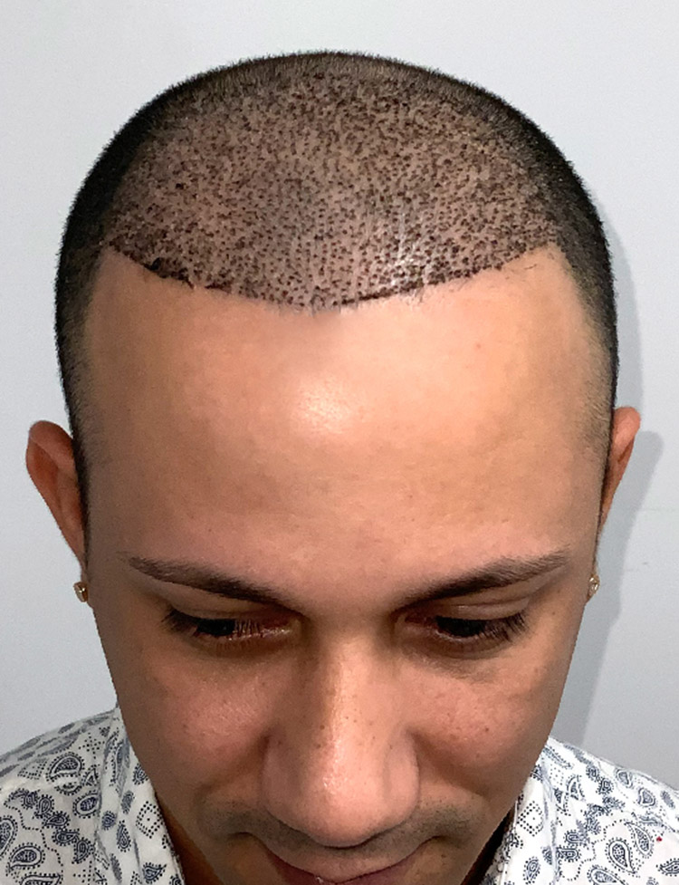 Hair Transplant in Miami p1 after