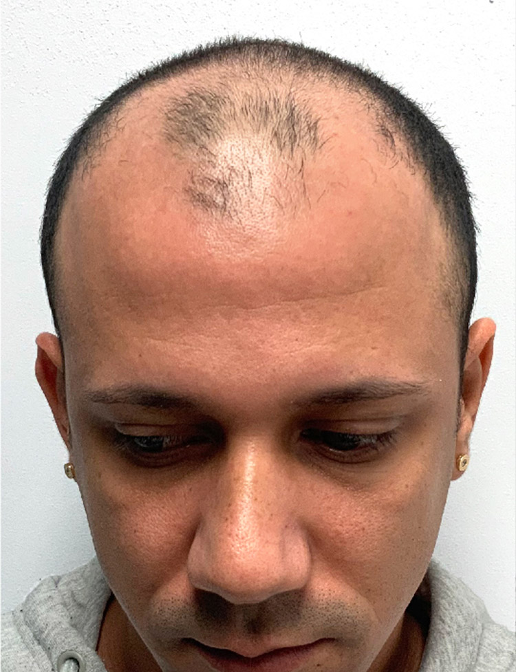 Hair Transplant in Miami p1 before