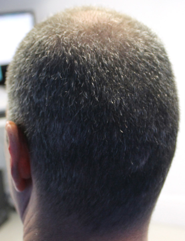 Hair Transplant in Miami pt2 after