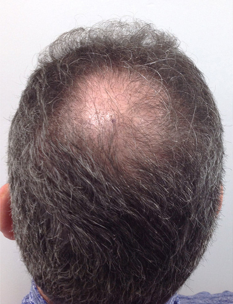 Hair Transplant in Miami pt2 before
