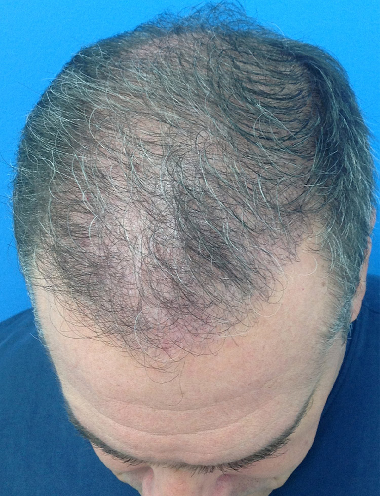 male hair transplant pt 1 after