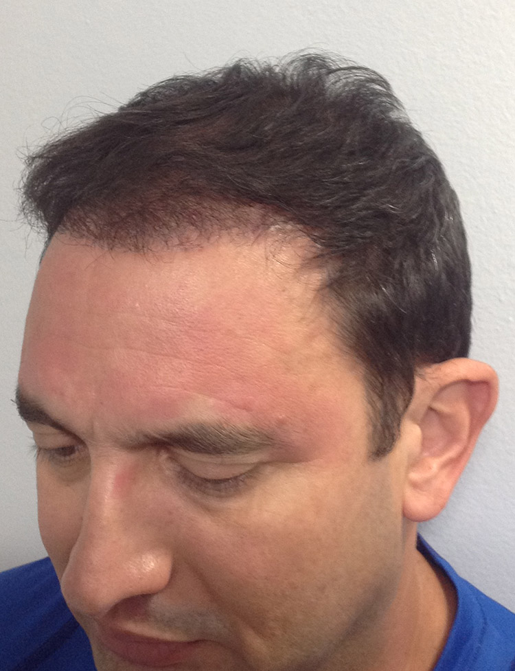 male hair transplant in miami patient 2 after