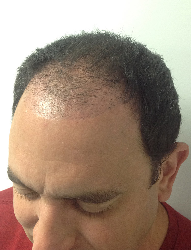 male hair transplant in miami patient 2 before