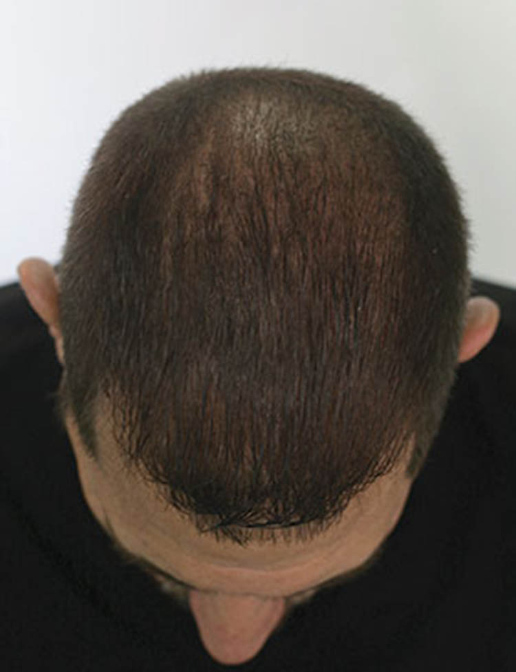neograft hair transplant miami pt1 after