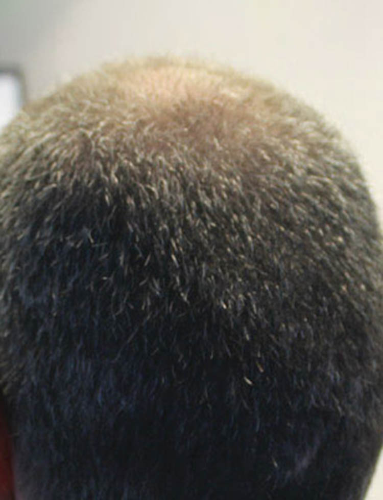 neograft hair transplant miami pt 2 after