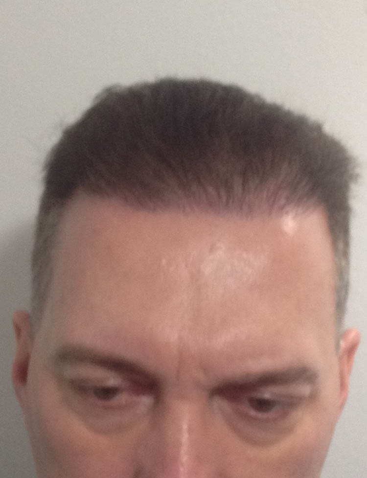 FUE hair transplant miami pt 4 after
